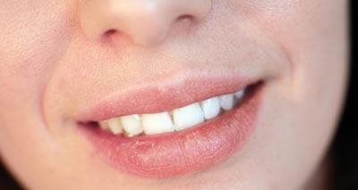 Get Rid of Dry Lips<br/>خشکی لب و درمان آن